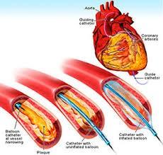 Open Heart Surgery in India-1.jpg