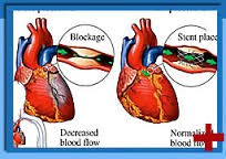 Coronary Artery Bypass Grafting Surgery in India.jpg
