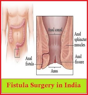 Anal Fistula.jpg