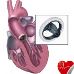 heart valve replacement copy.jpg