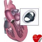 heart valve replacement copy.jpg