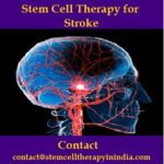 Stem Cell Therapy for Stroke.jpg
