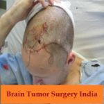 Brain Tumor Surgery in India.jpg