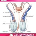 varicocele surgery India.jpg
