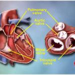 valve-repair-surgery-1 copy.jpg