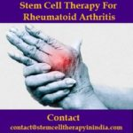 Stem Cell Therapy For Rheumatoid Arthritis.jpg