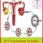 iui treatment in India.jpg