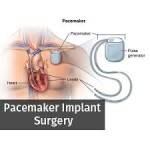 Pacemaker Implantation Procedure in India.jpg