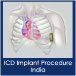 dp-ICD-implant-procedure-india-cancer-surgery-india.png