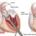 open heart surgery.jpg-1.jpg
