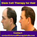 Stem Cell Therapy for Hair Loss.png