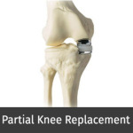 partial knee replacement.jpg